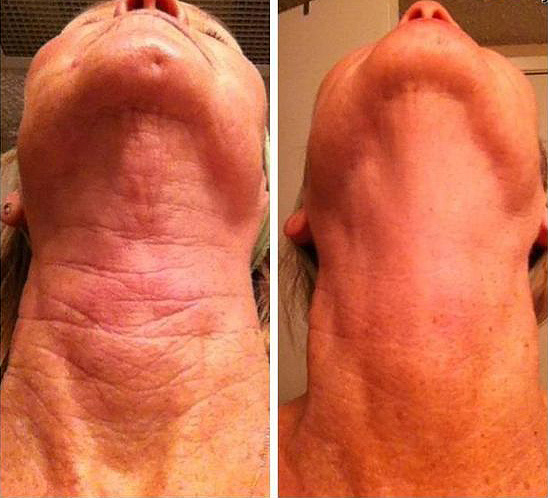 Before and After Results on neck