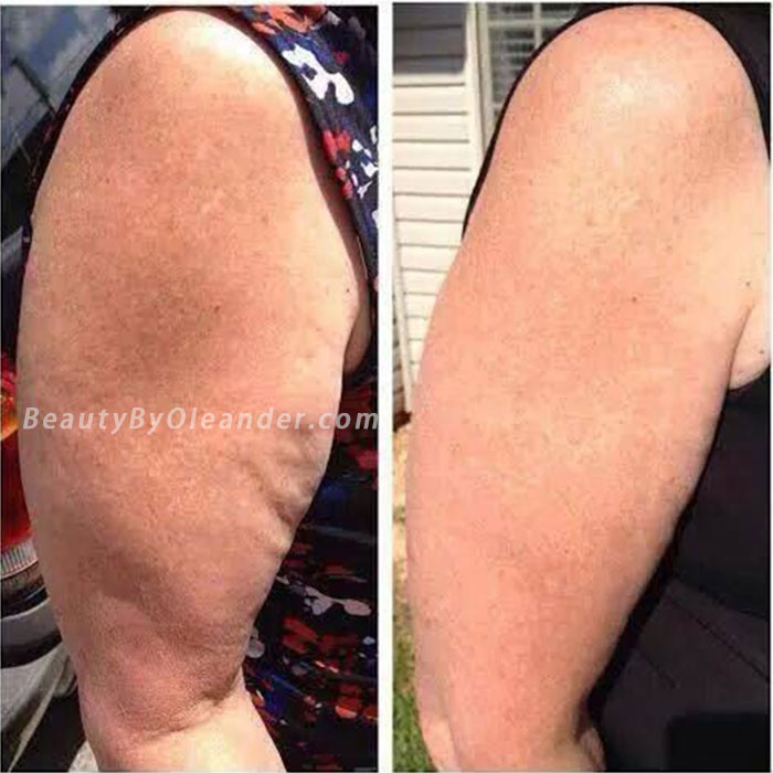 PURE Nerium FIRM Lisa's Before and After Results on Arms