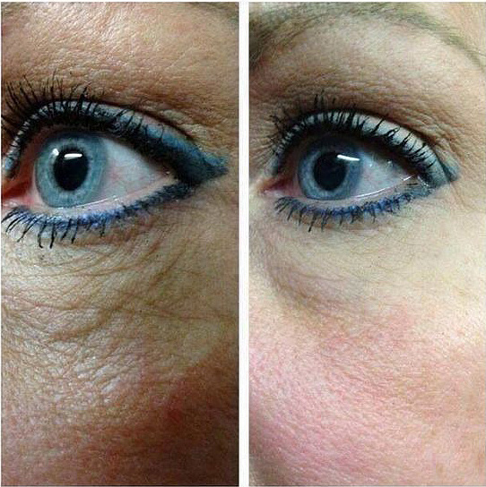 Pure Nerium Before and After Results Eyes
