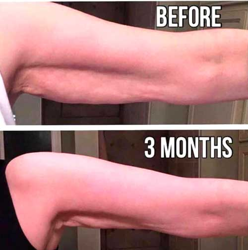 Nerium Firm Before and After Results on Arms