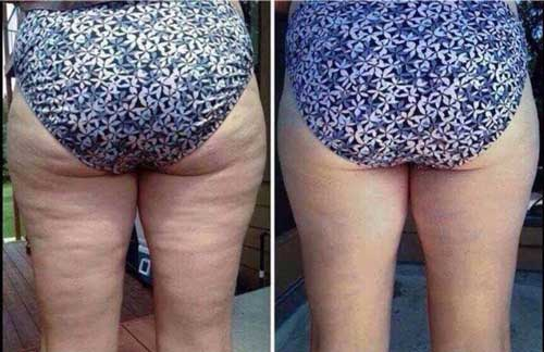 Pure Nerium Before and After Results Cellulite