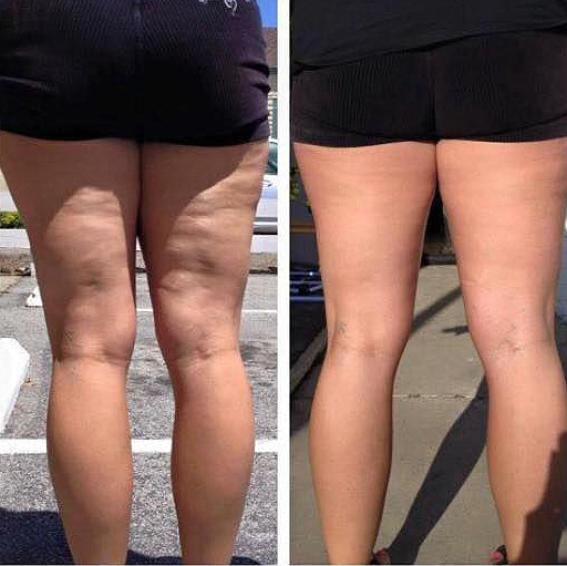 Pure Nerium Before and After Results on Legs