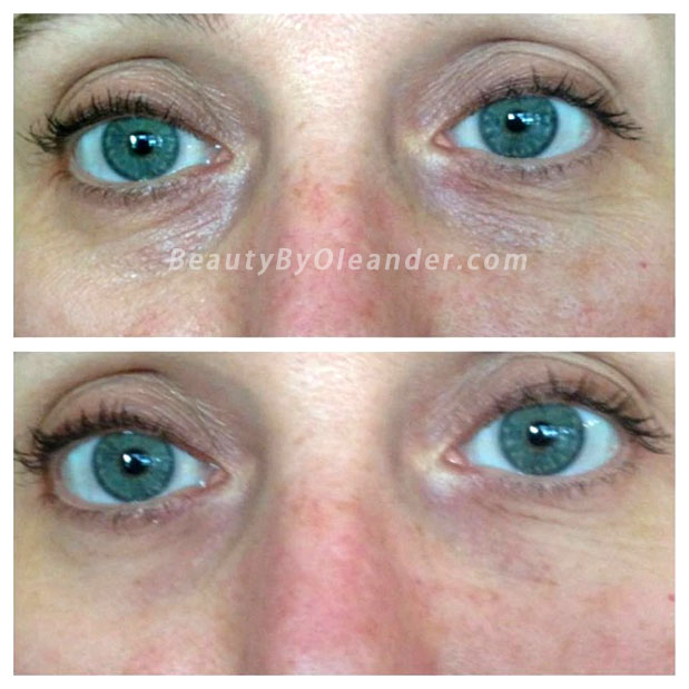 Nerium Eye Serum - Before and After Results from Lisa