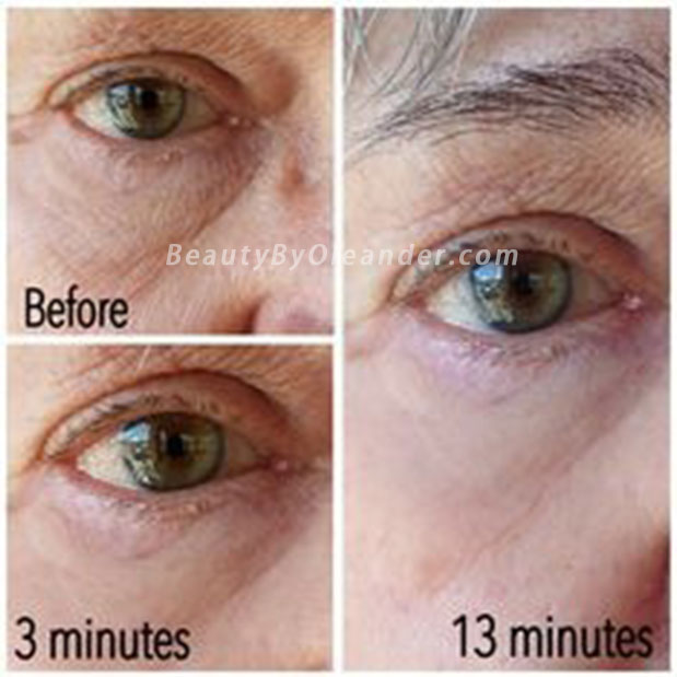 Before and after from using Nerium Eye Serum in 16 minutes